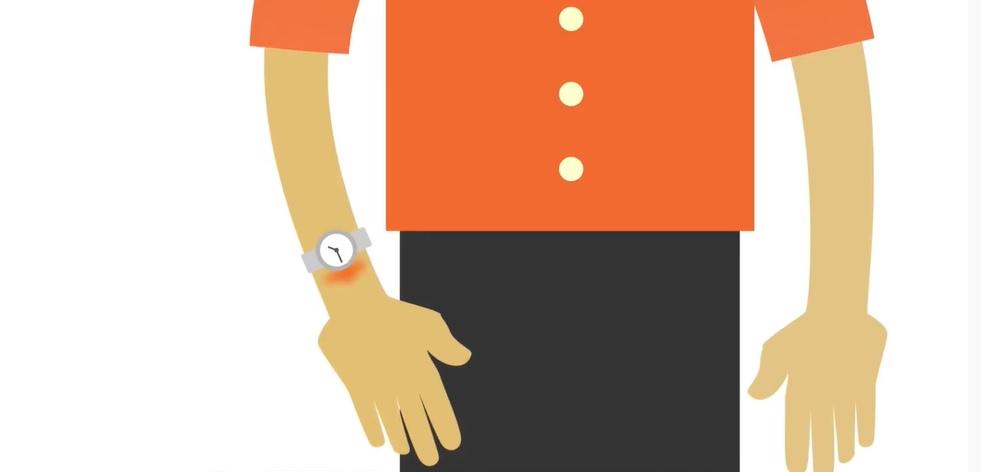 Hodinky bez niklu – nejlepší hodinky při alergii na kov?